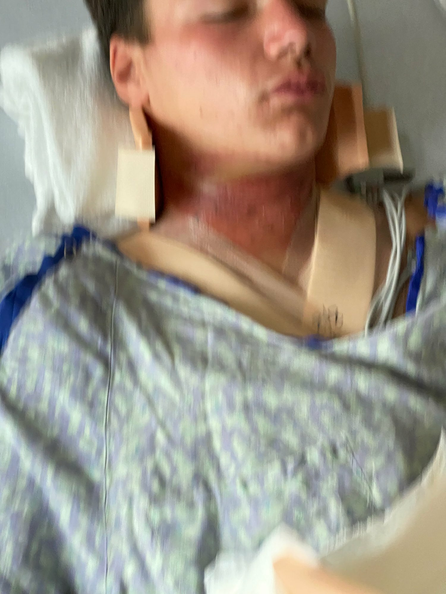 James Edler, 17, spent four days in Stony Brook University Hospital after riding his quad into a rope that had been strung across a Noyac trail on August 6. COURTESY JAMES EDLER